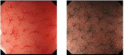 狭帯域光強調画像検査(NBI)