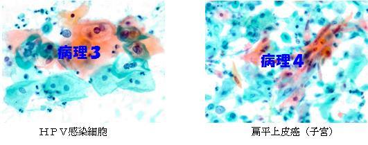 細胞診検査