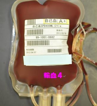 自己血製剤